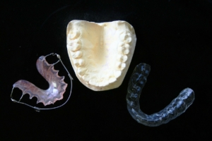 Zahnschutz, Zahnspange und Kiefer